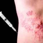 15 Most Common Symptoms of Shingles