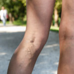 10 Quick Facts About Sclerotherapy