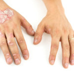 8 Most Common Psoriasis Symptoms
